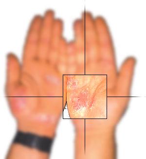 Las enfermedades las uñas de los pies a la psoriasis