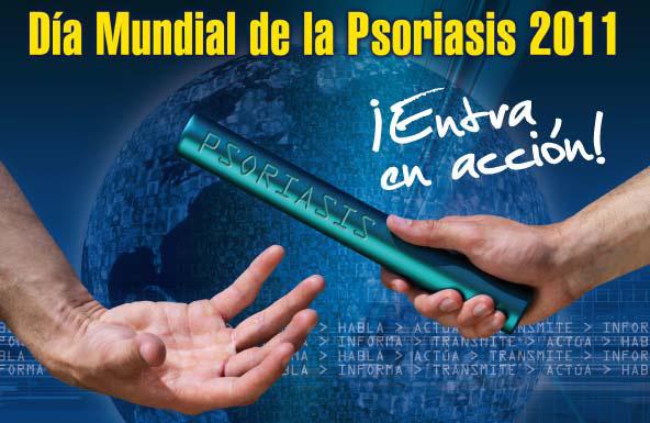 La psoriasis en las manos después del parto