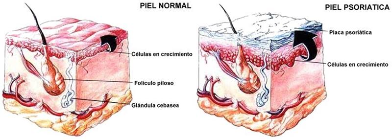 psoriasis balneario de paracuellos