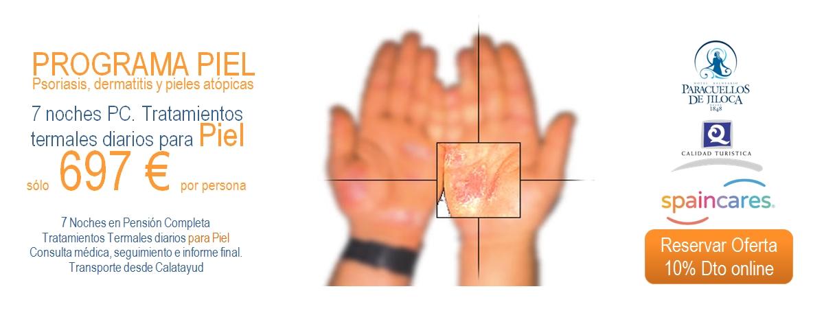 Tratamientos piel Balneario de Paracuellos